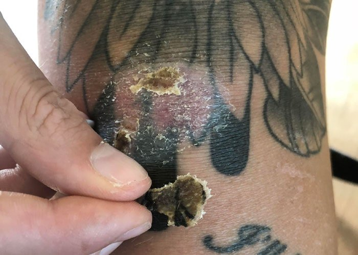 Ruin Your Tattoo By Peeling A Scab