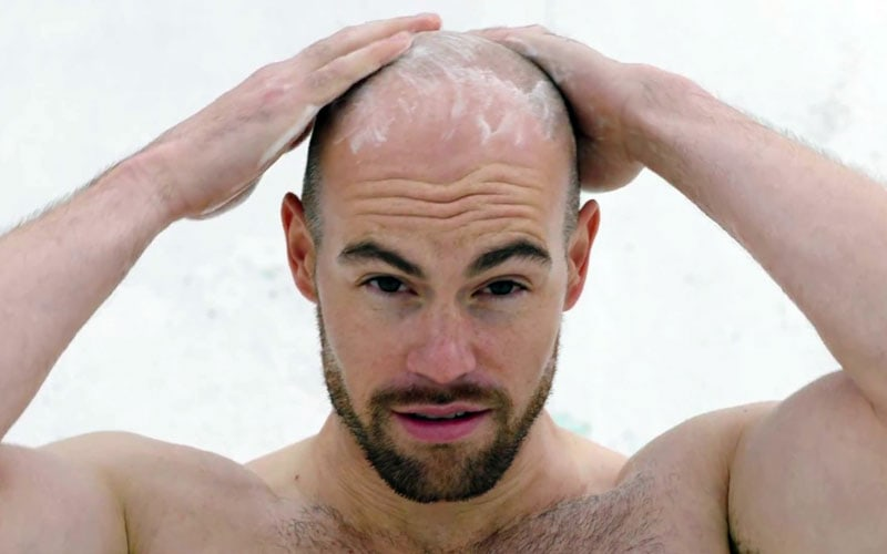 How To Keep Your Head Bald Longer